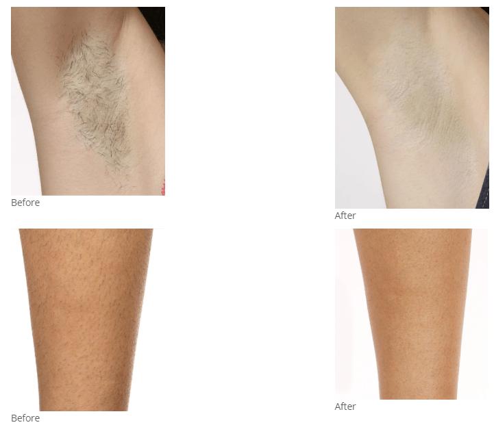 creme silk skin