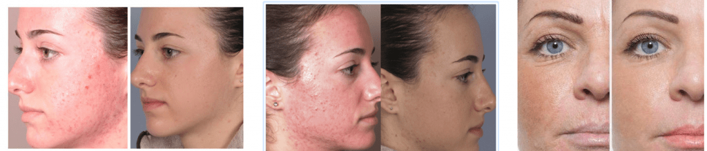 lumae skin before and after review