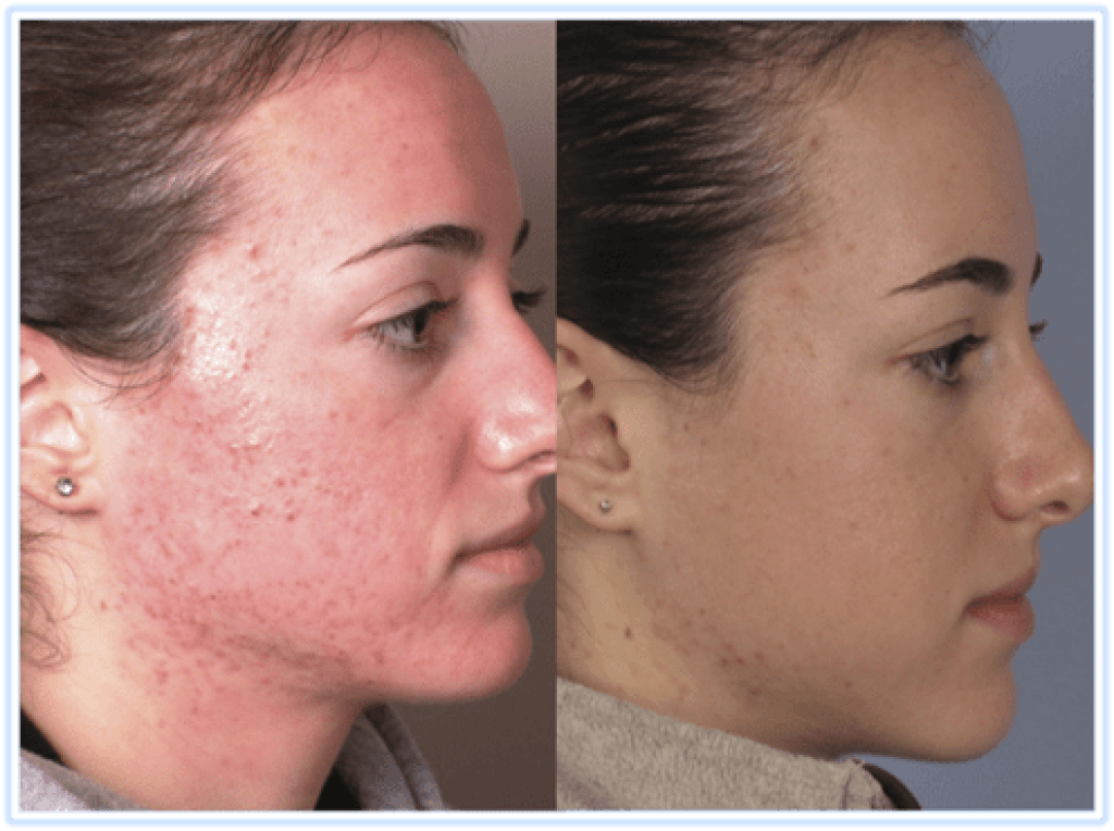 microdermabrasion at home before and after